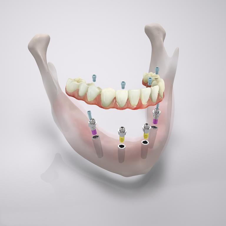 Klinik Klosterstern Hamburg | Feste Zähne an einem Tag